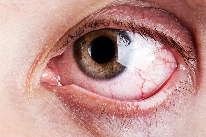 Suché oko Foto: Guideline, oficiální zdroj