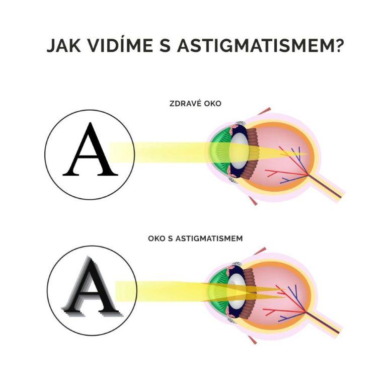 Astigmatismus Oficiální zdroj: NeoVize Brno/Guideline